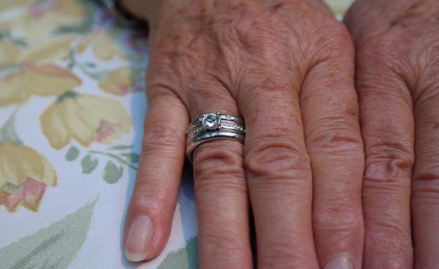 invecchiamento cutaneo cause rimedi