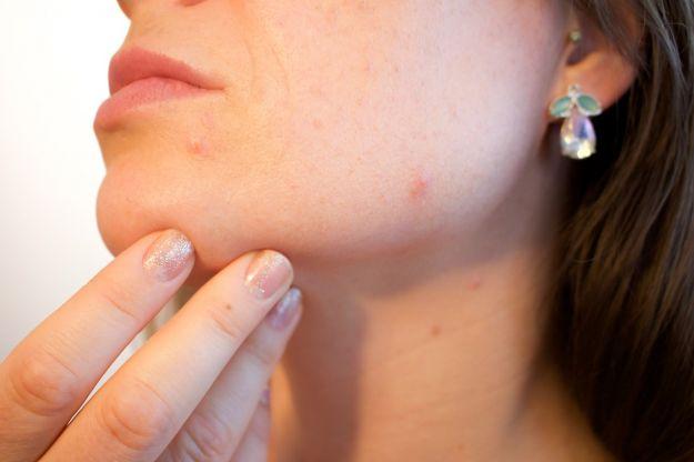 pelle del viso rovinata rimedi cosa fare