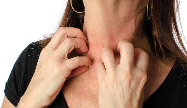 orticaria-stress-sintomi-cause-durata-rimedi-naturali