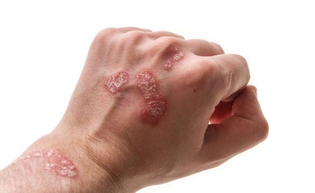 psoriasi-mani-sintomi-cure-rimedi