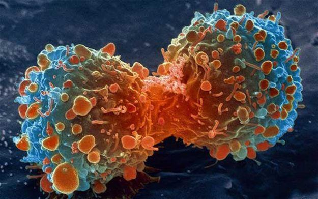 tumore interruttore