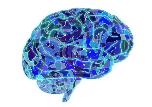 Cervello infarto cerebrale