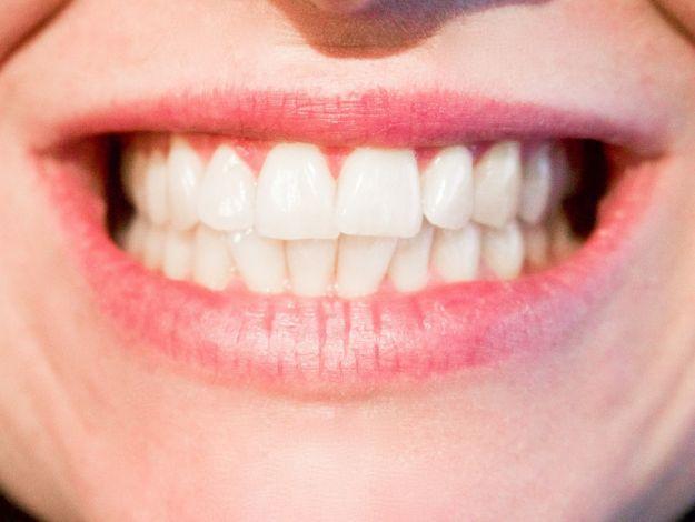 Denti bocca