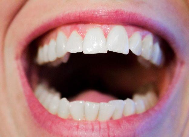 Denti storti