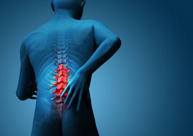 Può un'ernia del disco essere causata dallo stress?