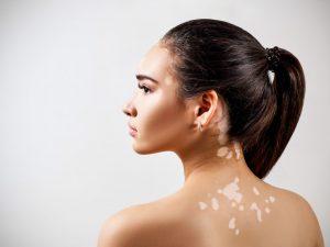 Ragazza con vitiligine sulla schiena