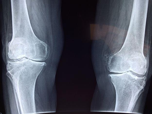 osteoporosi menopausa cause