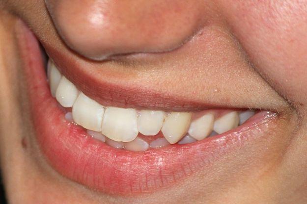 Denti salute gengive