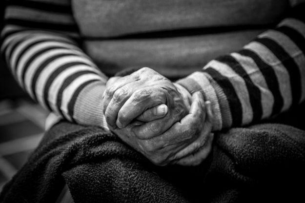 demenza senile placche aterosclerotiche