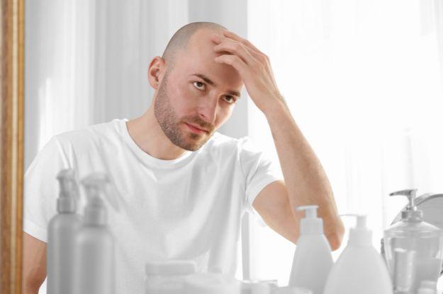 calvizie e effetti del fumo sui capelli
