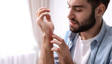 Ragazzo con una dermatite al polso