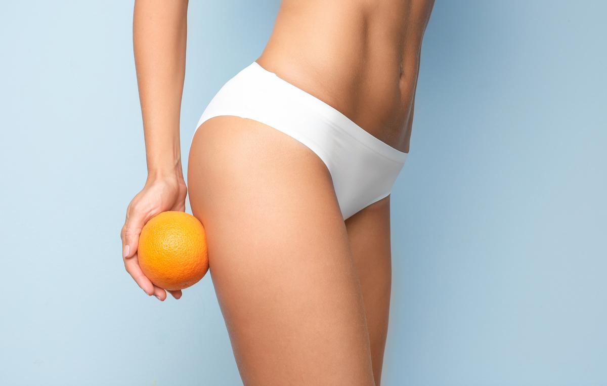test che cellulite hai