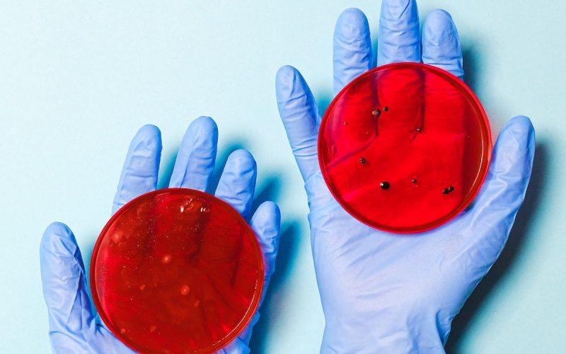 vetrini virus colture batteriche guanti