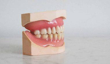 denti dentiera