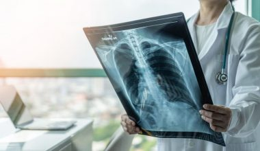 radiografia polmoni