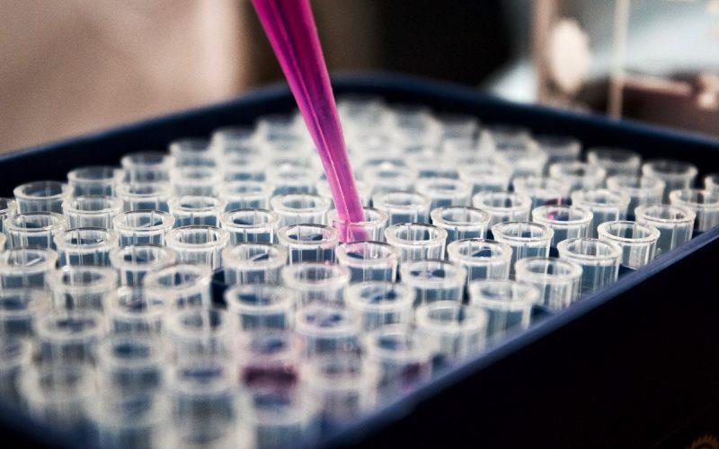 Linfoma diffuso a grandi cellule B: la Commissione Europea ha approvato una nuova terapia