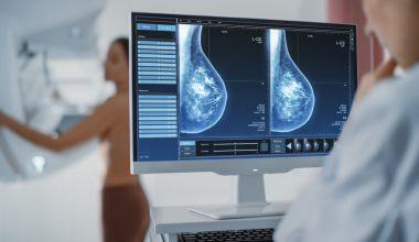 Prevenzione cancro al seno