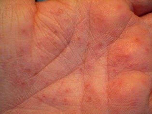 Bollicine sulla mano