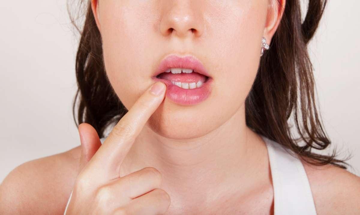Dermatite periorale intorno alla bocca